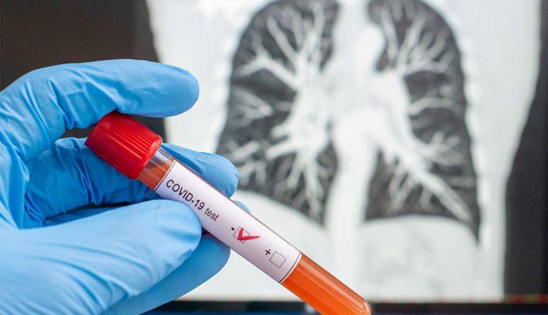 Coronavirus: ¿por qué se modifica la definición de caso sospechoso?