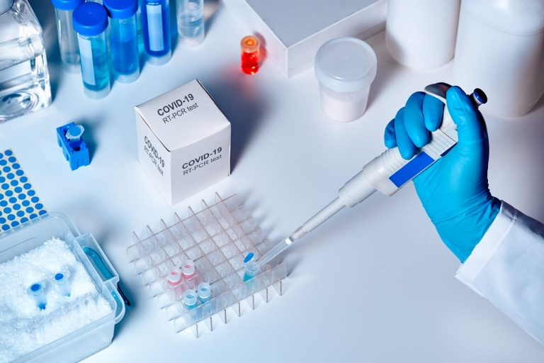 Coronavirus: ¿por qué Argentina no realiza test rápidos masivos?